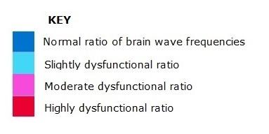 key to brainwave scan